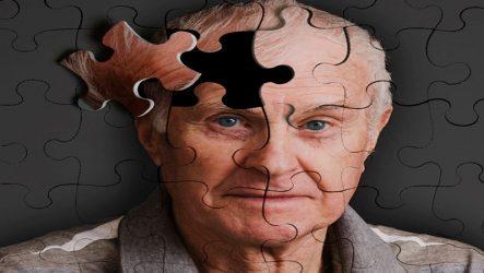 alzheimer-nedir (2)